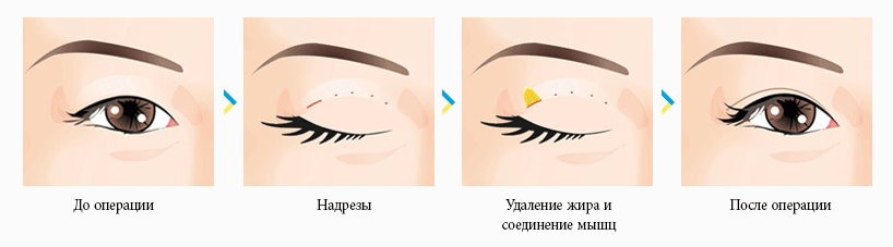 Блефаропластика азиатских глаз (Сингапури)