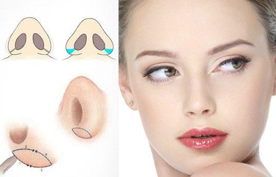 Ринопластика крыльев носа