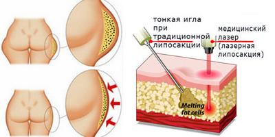 лазерная-липосакция-ягодиц