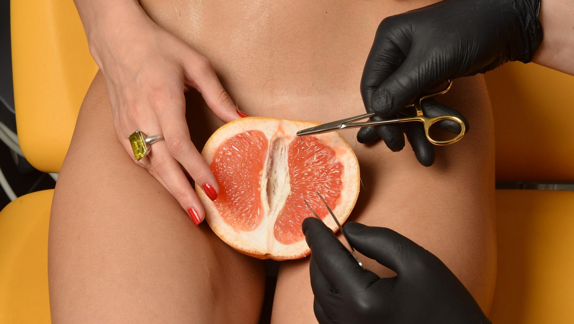Восстановление девственности, или гименопластика