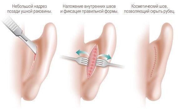 корреция лопоухости в Москве