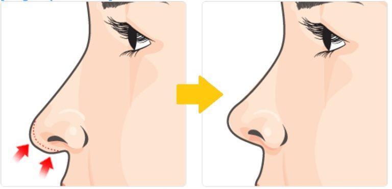сексуальное влечение к ноздрям женского курносого носа-рл3
