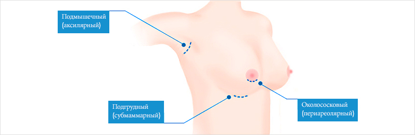 доступы для увеличения груди