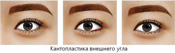 капнопластика-внешнего-уголка-глаз
