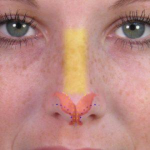 Фото 2. Коррекция кончика носа при закрытой ринопластике