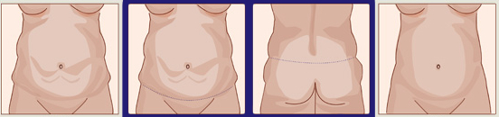 Расширенная абдоминопластика