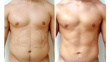 Липосакция для мужчин (фото до и после)