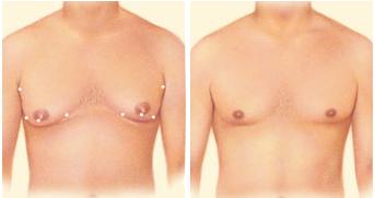 Липосакция-груди-у-мужчин
