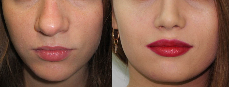 до и после коррекции кончика носа