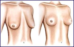 подтяжка-груди1-300x191
