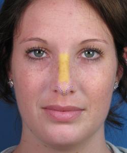 Фото. 1 Разрезы при закрытой ринопластике