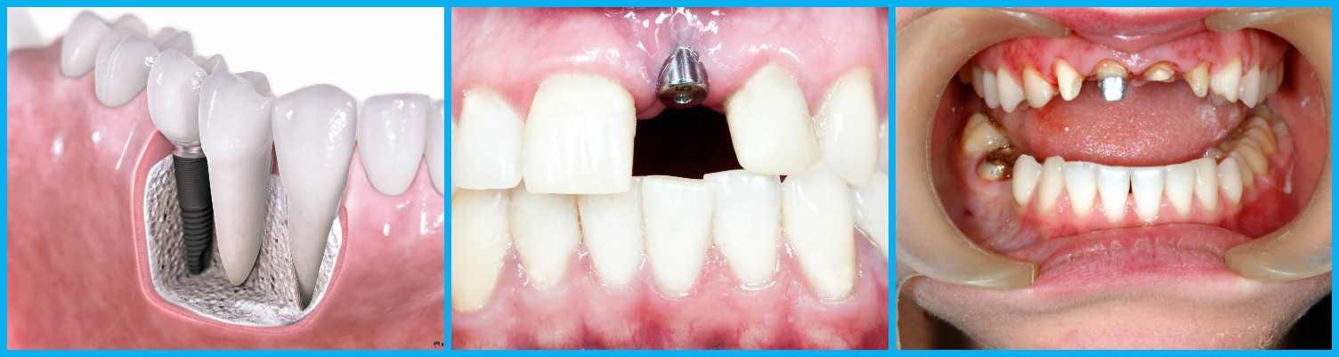Имплантология в центре стоматологии в Москве