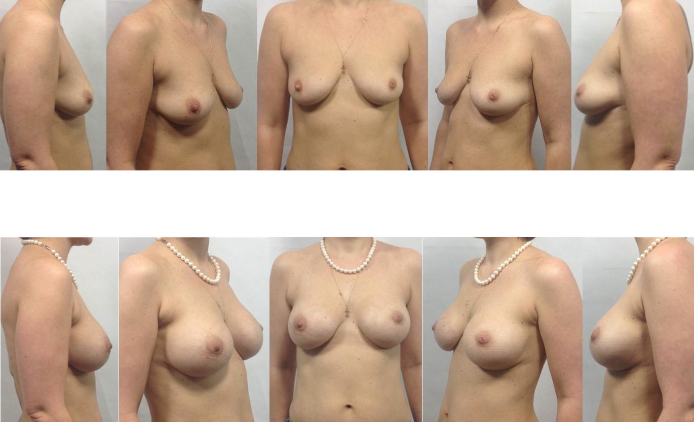 того женская грудь разных форм в порно сестренка скорее