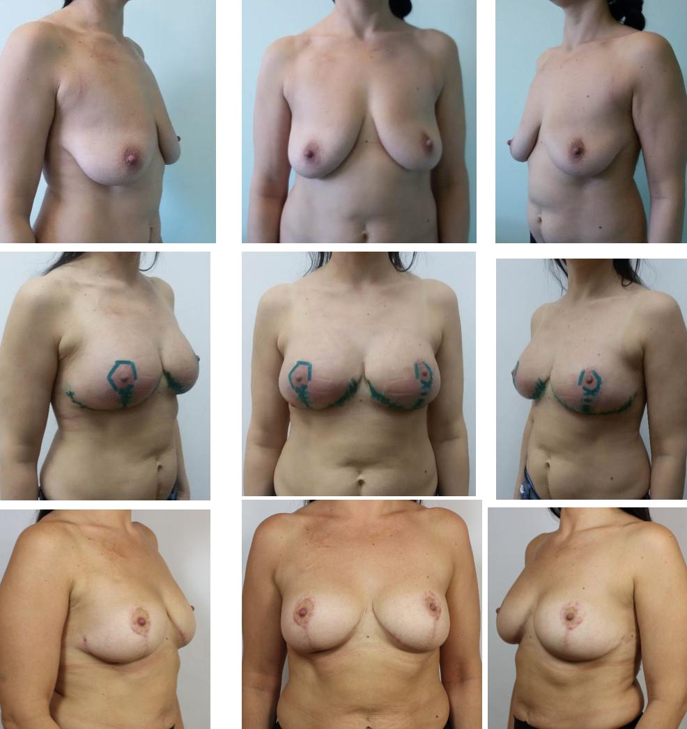 Фото различных типов женских грудей